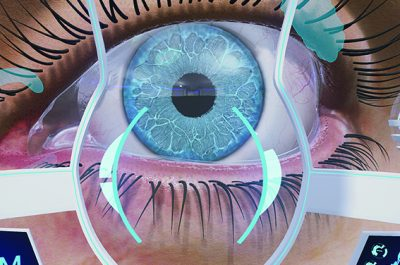 Ursapharm Virtual Reality Eye Experience